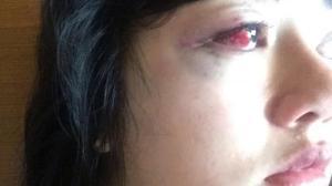 Pembuluh Darah Mata Dita Aditia Ismawati Pecah Karena Dianiaya Anggota DPR 4