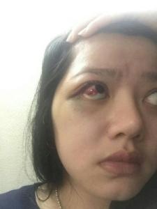 Pembuluh Darah Mata Dita Aditia Ismawati Pecah Karena Dianiaya Anggota DPR 6
