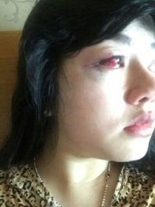 Pembuluh Darah Mata Dita Aditia Ismawati Pecah Karena Dianiaya Anggota DPR 7