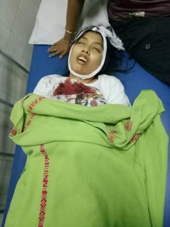 Italia Chandra Kirana Putri Tewas Ditembak Usai Pergoki Curanmor di Tangerang